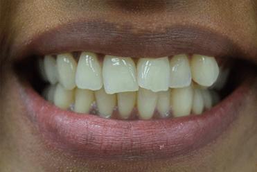 Before - SmileDesign
