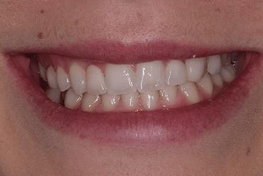 After - SmileDesign